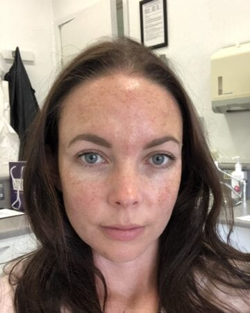 Botox after injections